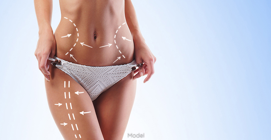 VelaShape® Cellulite Reduction