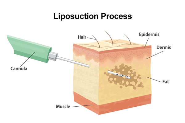 The first step of facial fat transfer is liposuction, during which Dr. Greenberg can remove fat cells from the hips, abdomen, buttocks, or thighs.