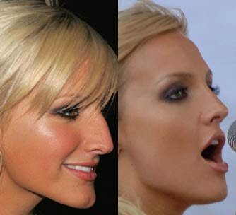 ashlee-simpson-nose-job-2