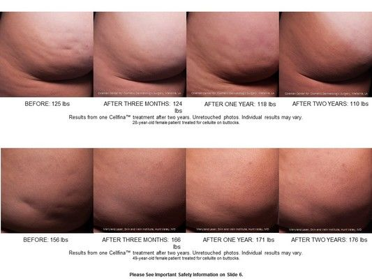 max_width_medium_Cellfina_cellulite_treatment_before_and_after_photos