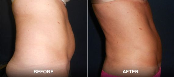 original_Liposuction_BNA