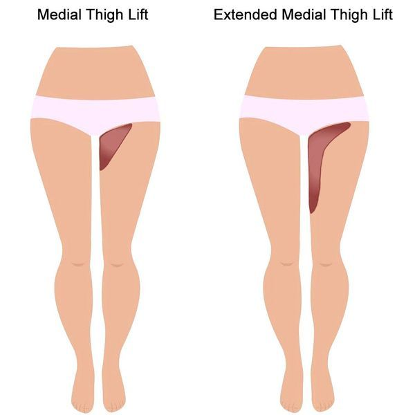 thigh-lift
