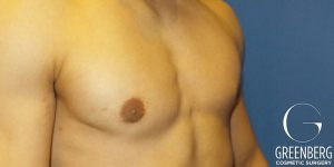 Male Breast Reduction post-op
