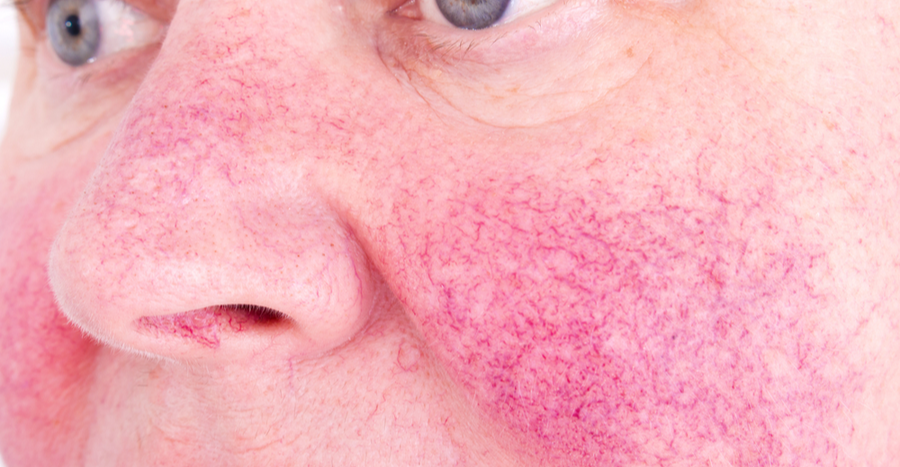 Rosacea Treatment Long Island New York City Manhattan Nyc