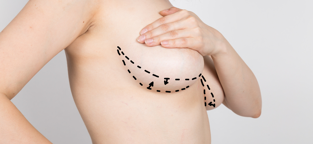 Who Is Suited to Breast Augmentation in Long Island?