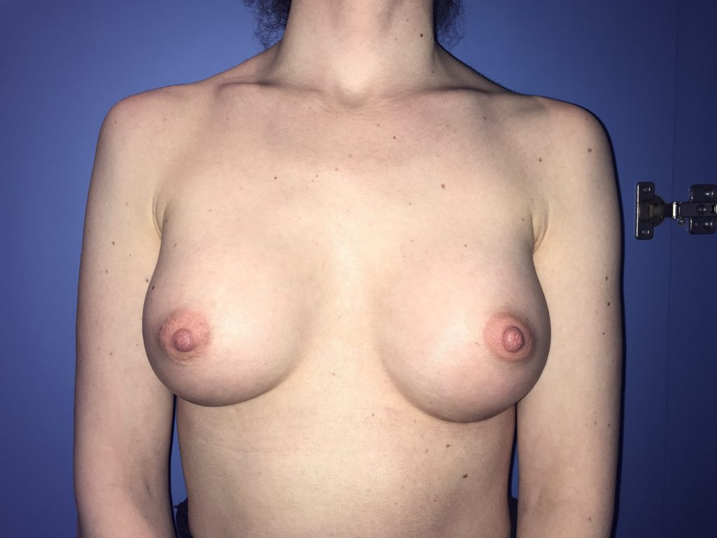 After photo of Breast Augmentation